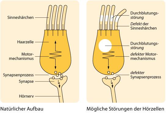 Mögliche Störungen der Hörzellen